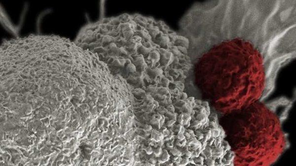 Λεμφοκυτταρική Λευχαιμία